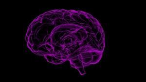 תמונה של מוח
